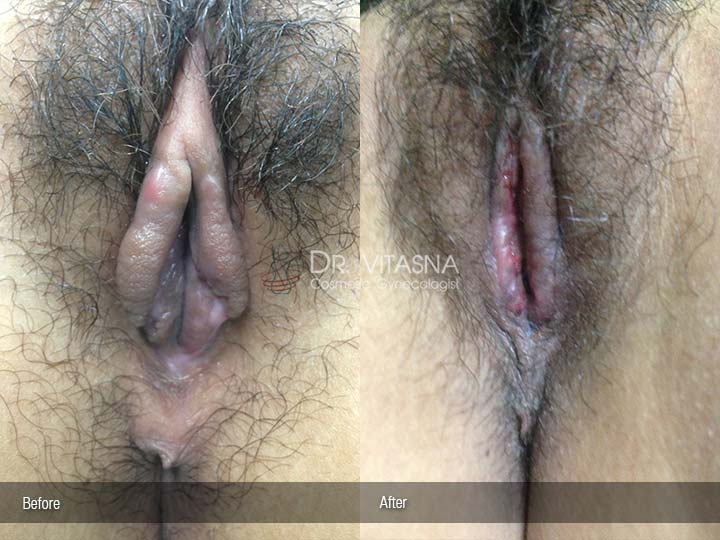 Correction-after-Labia-Minora-Clitoral-Hood-Reduction-1