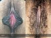 labia-minora-clitoral-hood-reduction-vitasna-technique-13