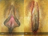 Labia-Minora-&-Clitoral-Hood-Reduction-by-WedgeTechnique-6
