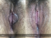 2-3-Labia-Minora-Clitoral-Hood-Reduction-Simple-Edge-Excision