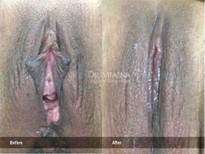 vaginoplasty-perineoplasty1