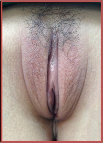 The Labiaplasty Techniques